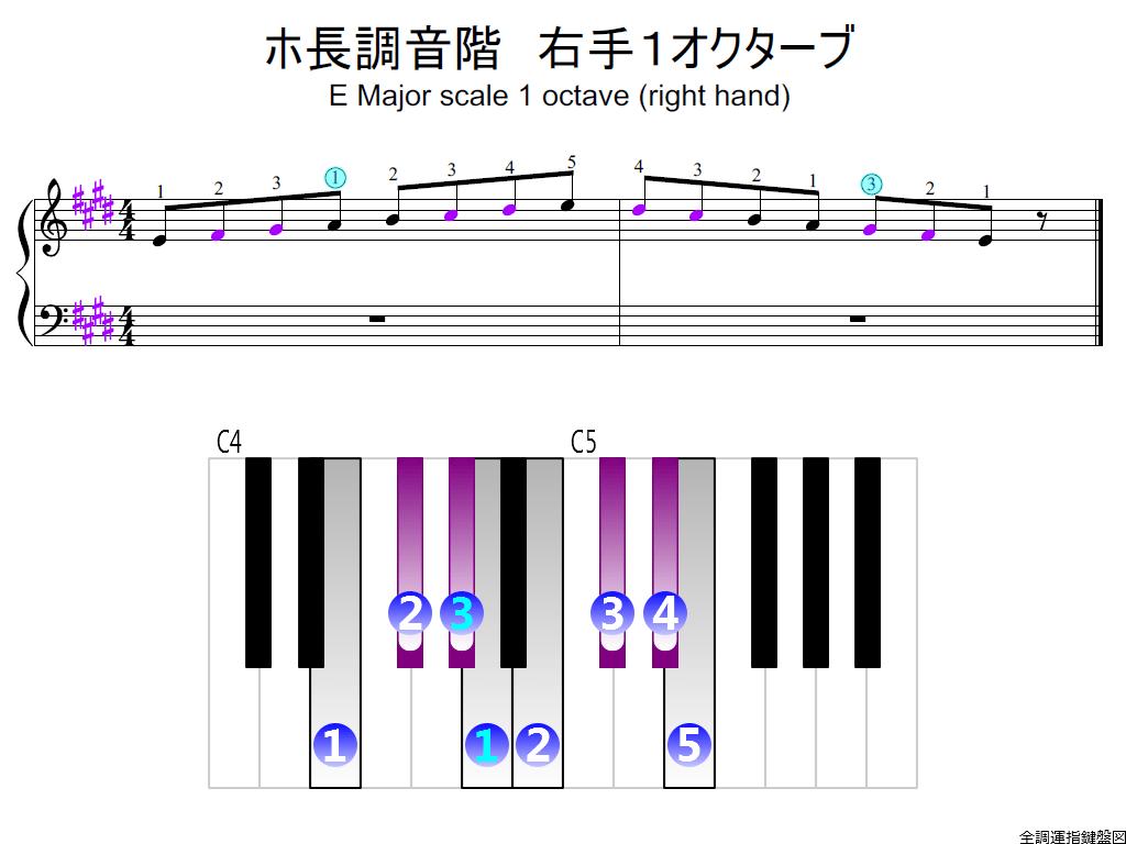 f2.-E-RH1-whole-view-colored